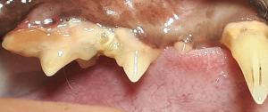 Photo 1 - entzündetes Zahnfleisch